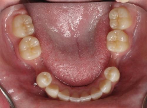 socket-bone-graft-preservationfor-dental-implants-ramsey-amin-dds-2.jpg