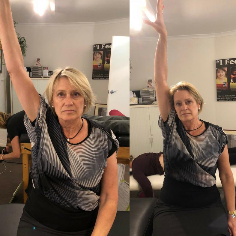 Improvement in shoulder restriction