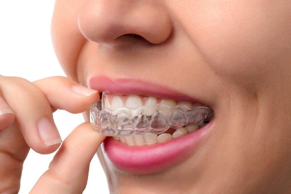 Straight teeth Dentist