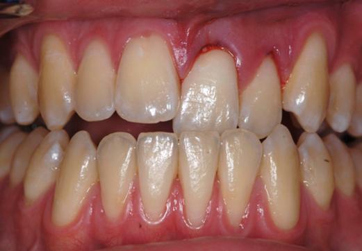 Broken teeth mouthguard