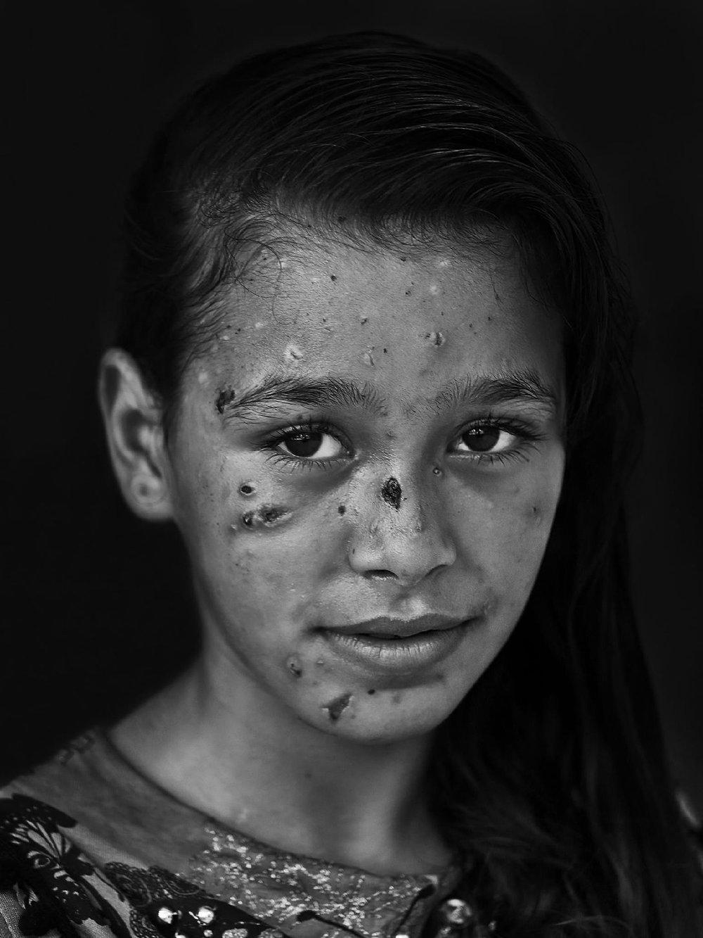 Mohammad's award-winning photograph: Dalia Kahlifa, 9-year-old Palestinian victim of Israel's 2014 incursion on Gaza