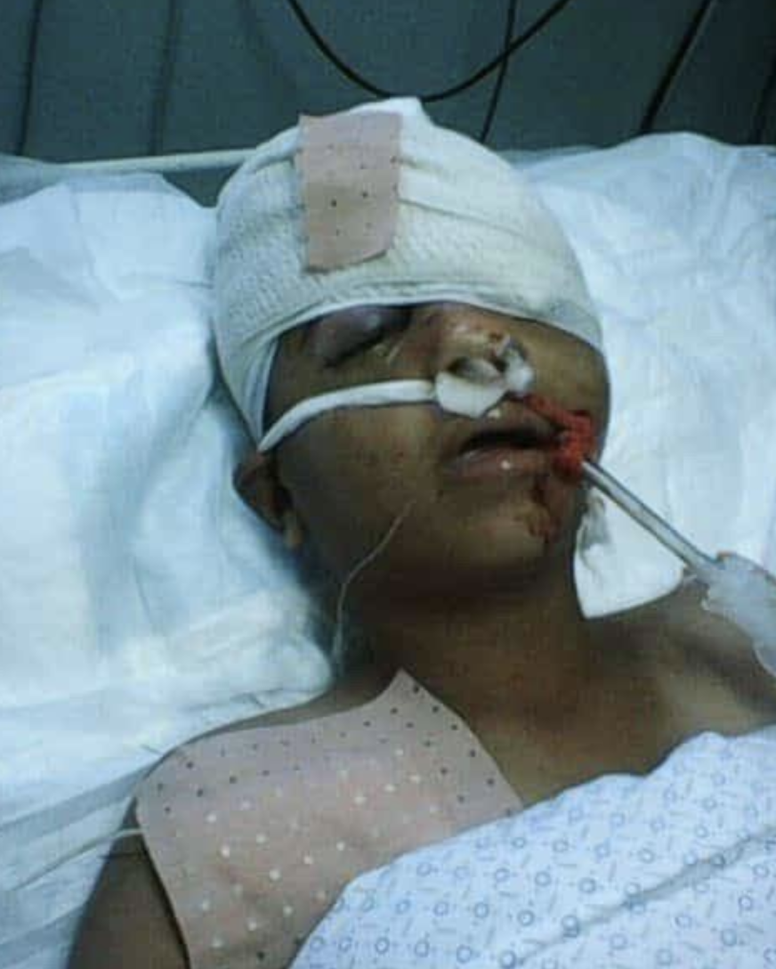 Mahmoud in hospital in Gaza in the first days after he was shot. Image given with permission by Mahmoud's family