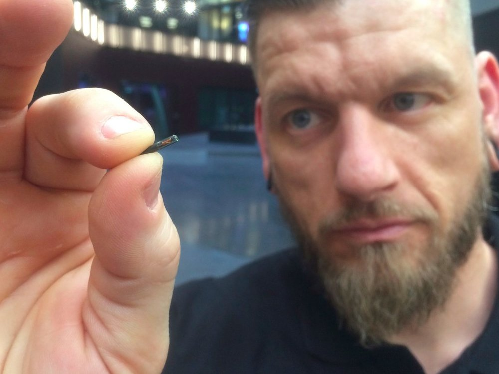 "A microchip implant as shown in this photo with ""body-hacker"" Jowan Osterlund of Sweden.  James Brooks/AP"