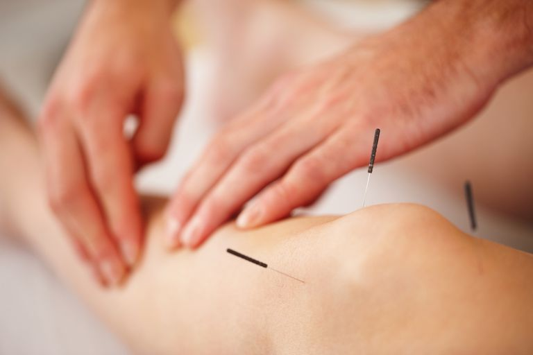 acupuncture.jpg