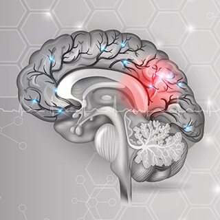 CS-Cerebrovascular-Accident.jpg