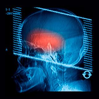 CS-Cerebellar-Atrophy.jpg