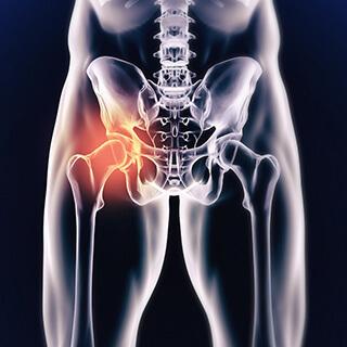CS-Hip-Femoroacetabular-Arthroscopy.jpg
