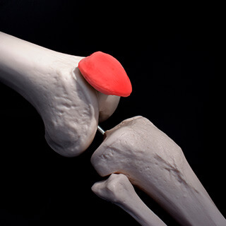 CS-Chronic-Patellofemoral-Pain.jpg