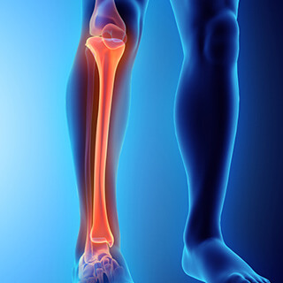 cs-tibial-stress-fracture.jpg