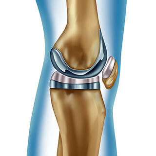 CS-Unicompartmental-Knee-Replacement.jpg