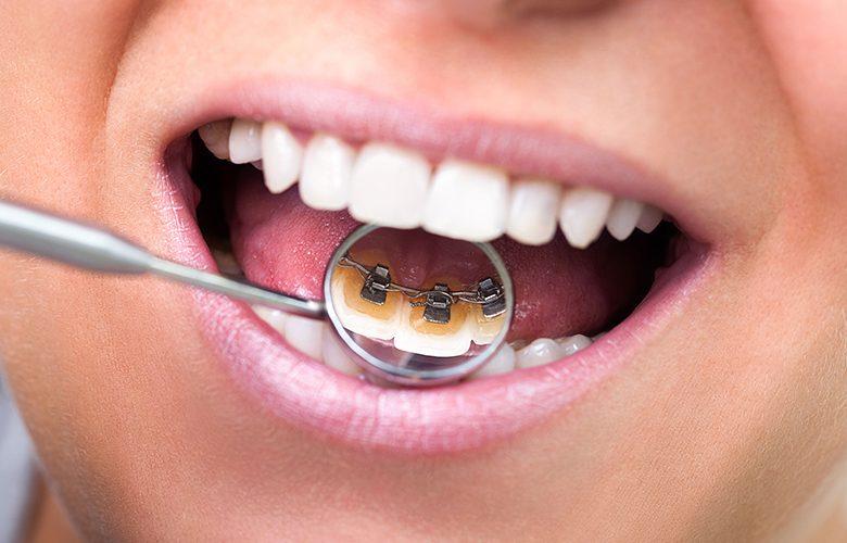 treatments-hs-780x500.jpg