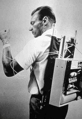 The first closed-loop insulin pump device for the treatment of type 1 diabetes