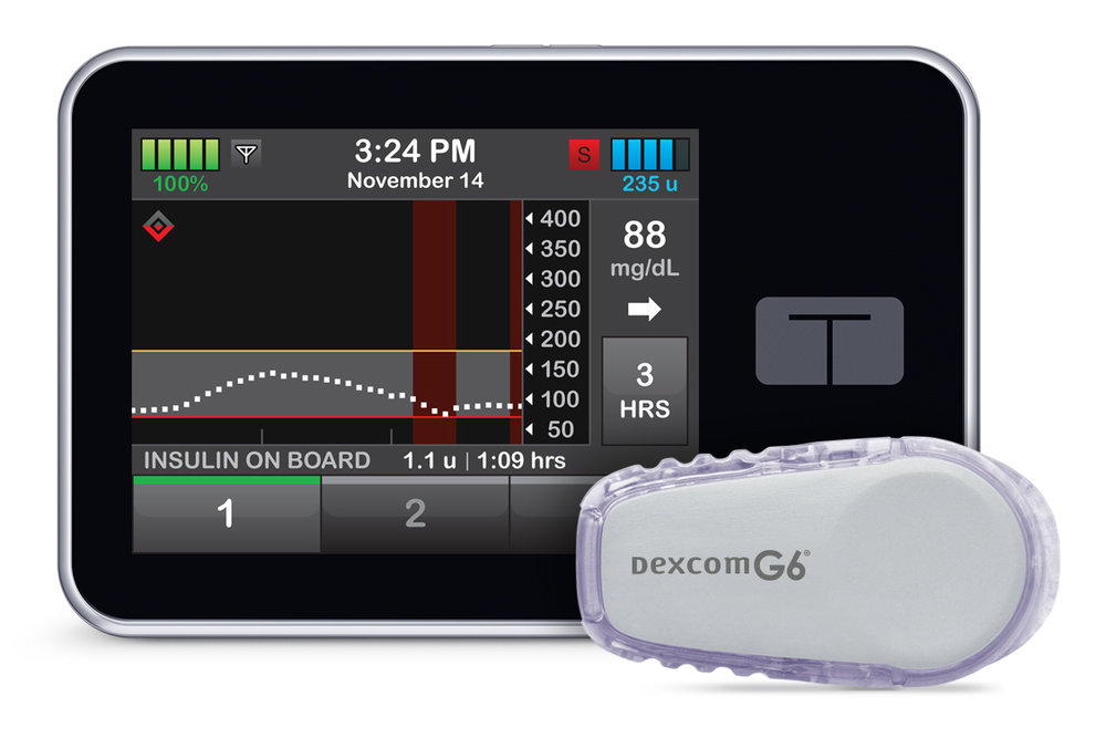 Tandem Diabetes Care's  t:slim X2  Insulin Pump integrated with DexCom's  G6  CGM System