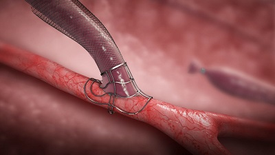 Laminate Medical Technologies'  VasQ  device