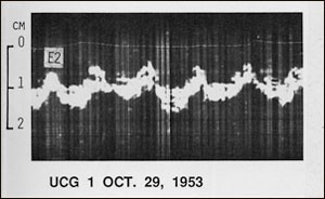 The very first recording of the ultrasound echo from the heart. Source: Lund University, Lund, Sweden