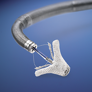 The Abbott  MitraClip  device for transcatheter treatment of mitral valve regurgitation.