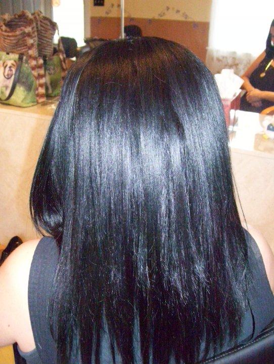 Severe-alopecia-after-restoration-service.jpg