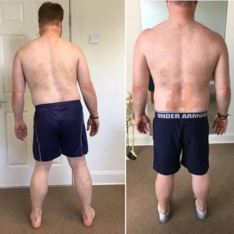 Pain & Injury Clinic posture bad back
