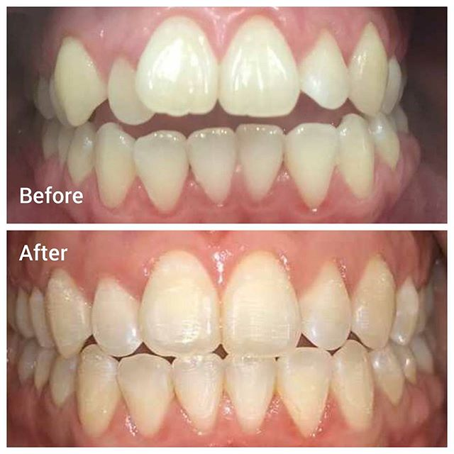 Don't let anything get in the way of that smile! Braces or #Invisalign are perfect options and have helped our patients feel more confident while showing off their pearly whites! 💯💯💯💯 . . . . . . #dearfield #family #dentistry #dentists #dentist #teeth #smiles #smiling #smile #pearlywhites #pearlywhite #hygiene #sofreshandsoclean #drgogate #rishidds #drlin #racheldds #teamworkmakesthedreamwork #greenwich #greenwichct #connecticut #USA #healthcare #featured #cleaning #hygienist #visit