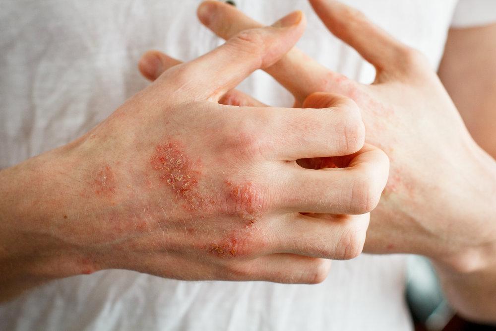 eczema.jpeg