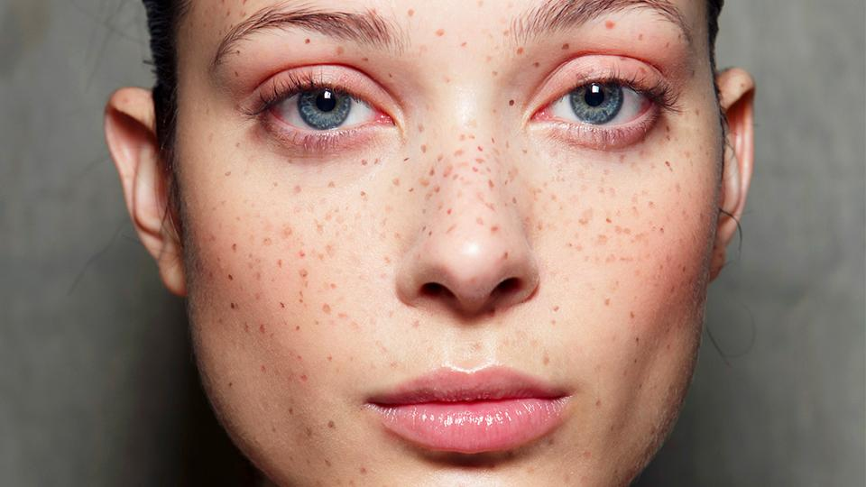 Why Your Dermatologist Wants You To Use Vitamin C On Your Skin.jpg