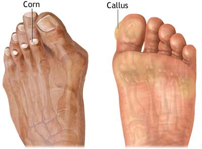 Corns and Callus Podiatry Toe Pain