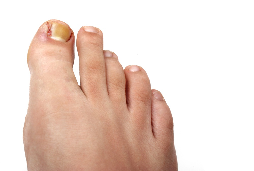 Podiatry Ingrown Nail Surgery
