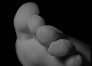 Podiatry Corns and Callus