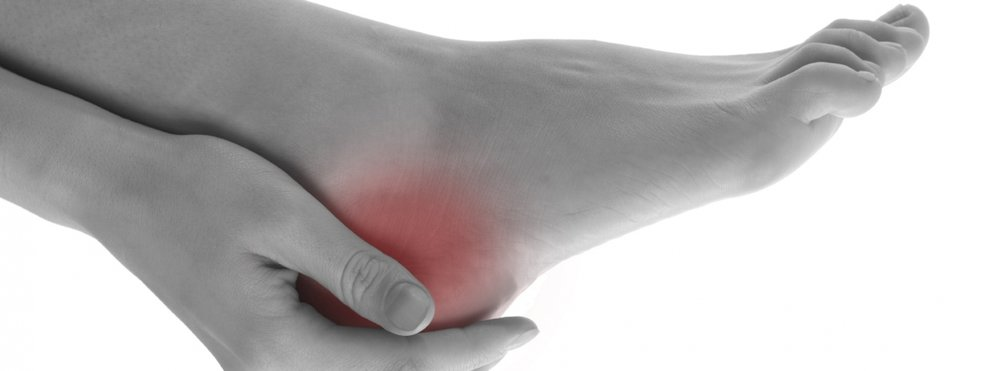 Podiatry Newcastle Heel Pain