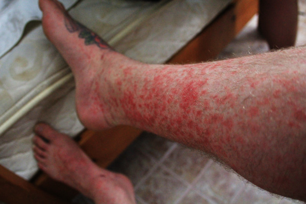 Some sort of tropical infection that had be bedridden for days with the flu in Mexico.