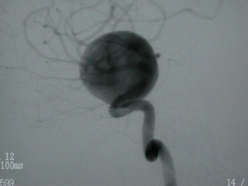 Eric Nussbaum, MD, brain aneurysm neurosurgeon