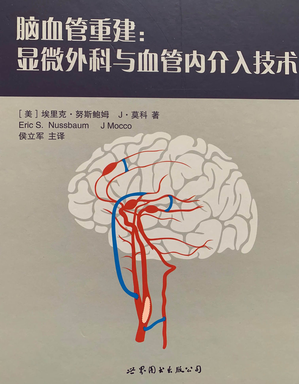 Eric_Nussbaum_MD_Aneurysm_book_Chinese.jpg