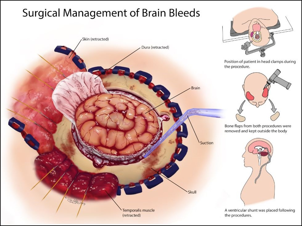 Surgical Management of Brain Bleeds