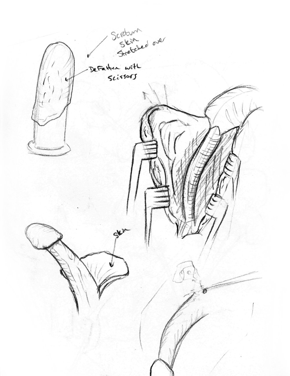 Vaginoplasty surgical sketch