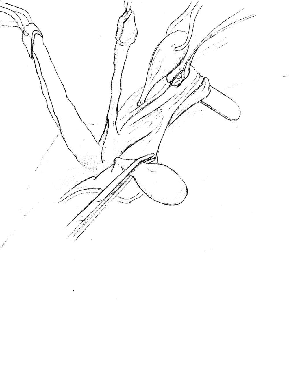 Vaginoplasty concept sketch