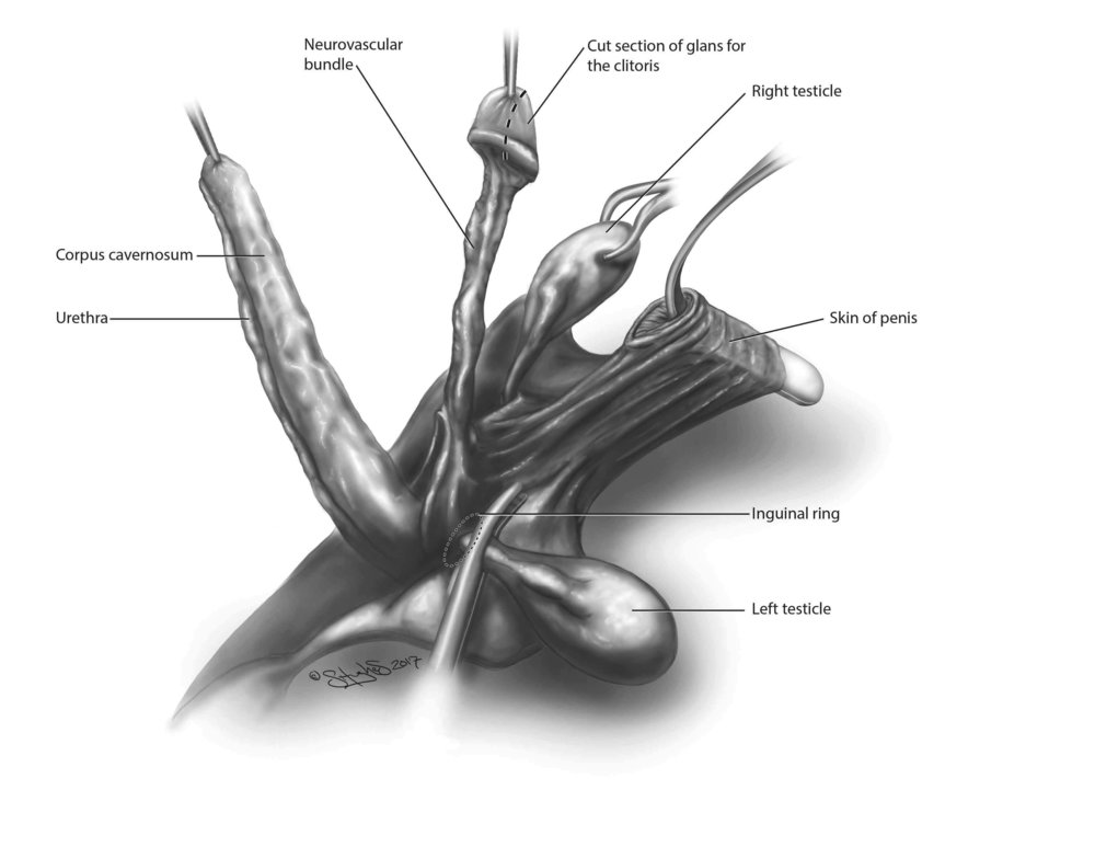 Vaginoplasty decimated penis