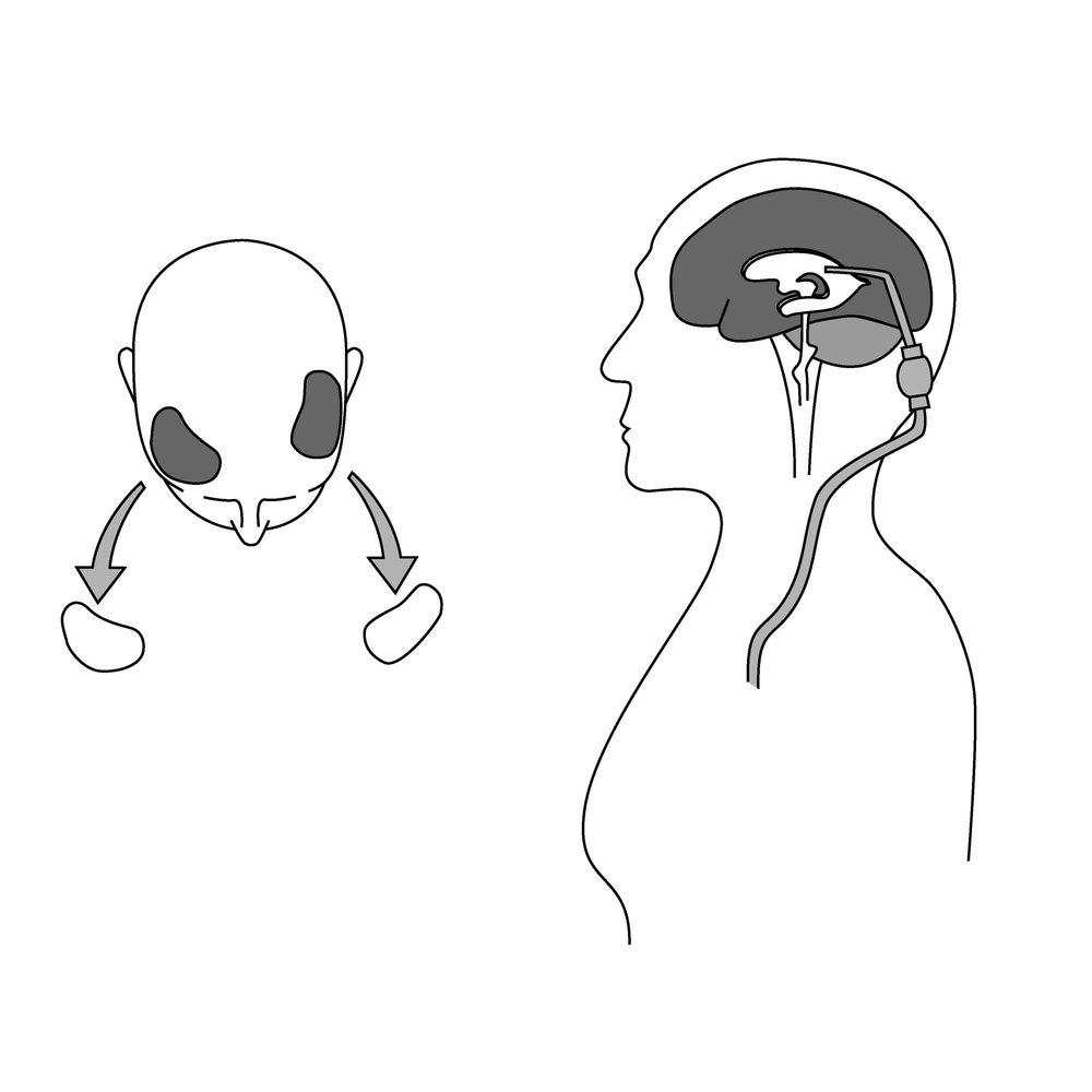 Craniotomy asset