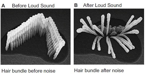 hair_cells_normal_damaged.jpeg