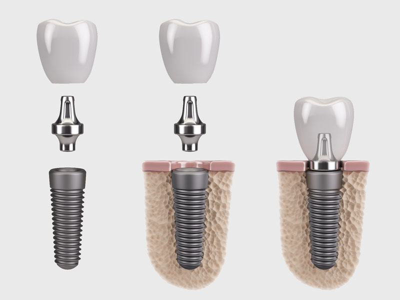 dental-implant-isolated.jpg