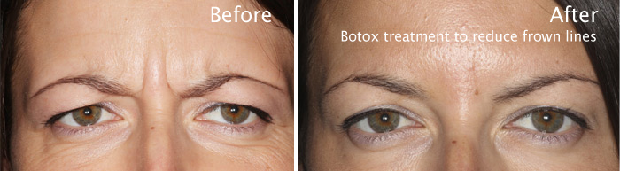botox-comparison1.jpg