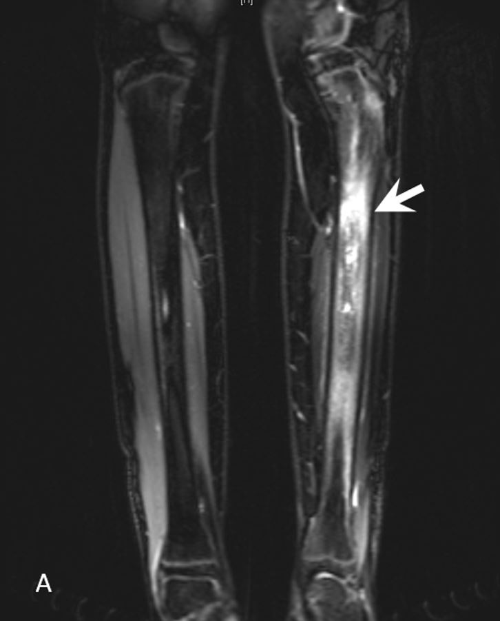MRI showing CRMO inflammation in the tibia.