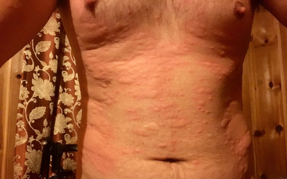 One morning Dan woke up with a severe rash. An antihistamine brought it down.