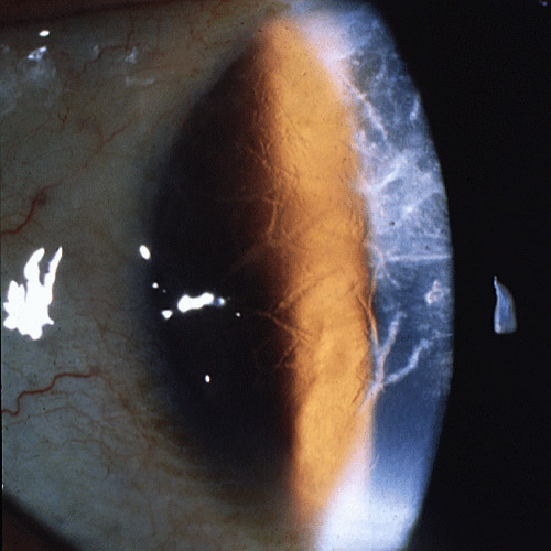 Lattice corneal dystrophy type 1. Image from  Wikipedia .