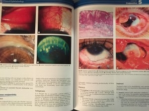 Example of the 7th edition of Kanski's Clinical Ophthalmology.