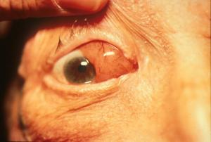 "External exam of orbital lymphoma. Note the ""salmon patch"" appearance of the conjunctiva, which is a key clinical descriptor of orbital lymphoproliferative conditions.  Image credit:  khanfacial.com"