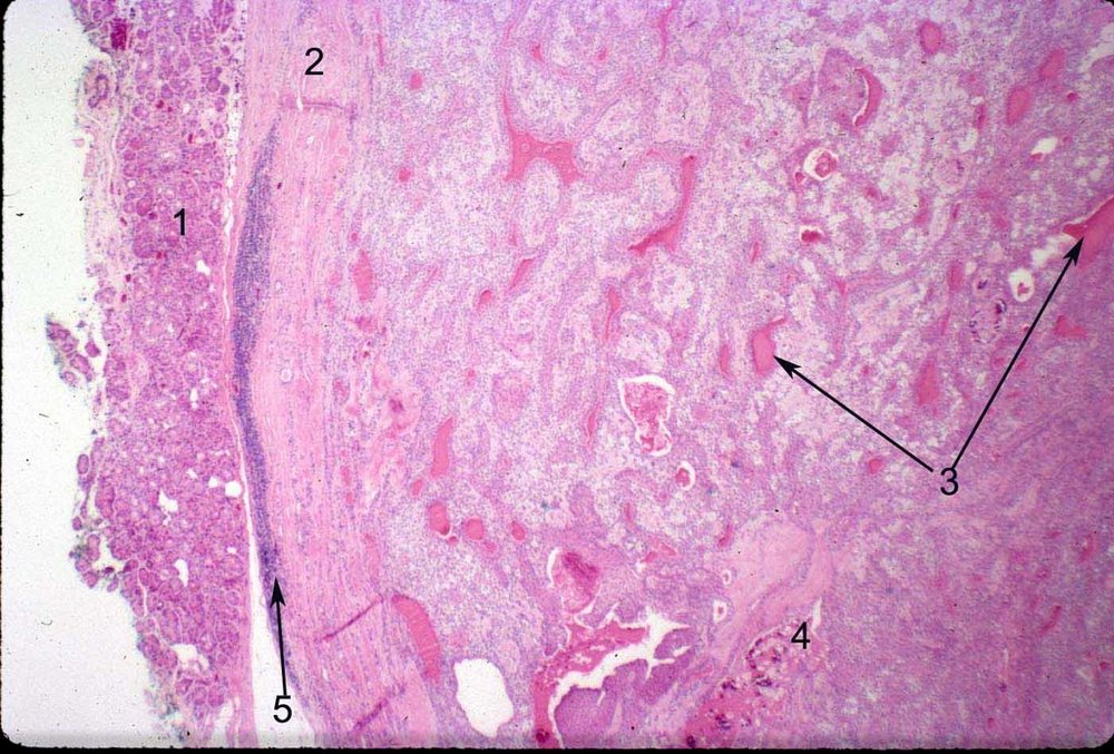 Histopathology of a pleomorphic adenoma. The pseudocapsule is featured on the left (2), pushing the normal lacrimal gland tissue aside (1). Epithelial ducts (3) and calcification may be present (4), and chronic inflammation may be present along the edge of the pseudocapsule (5).  Image credit:  Mission For Vision .