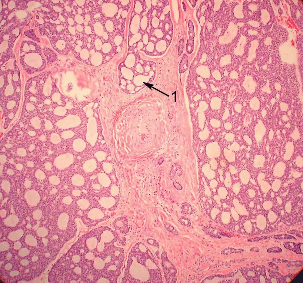 "Histopathology of adenoid cystic carcinoma. The characteristic description is the ""swiss cheese"" (cribriform) appearance, which is actually formed by back-to-back ducts with no intervening stroma (1). This is most common form, though there are other forms as well.  Image credit:  Mission For Vision ."