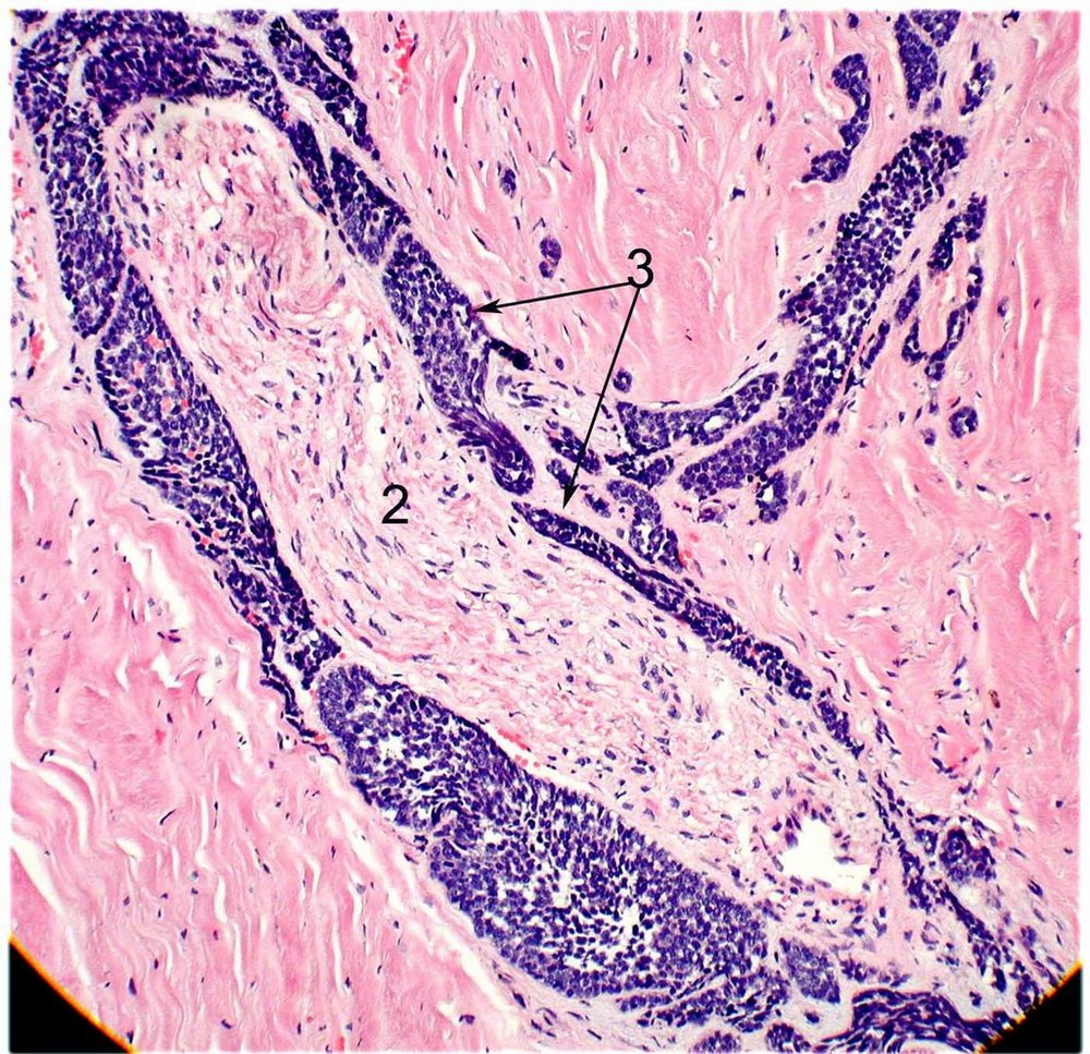 Histopathology of adenoid cystic carcinoma, basaloid type. This slide demonstrates perineural invasion. The blue basaloid cancer cells (3) have surrounded the normal nerve tissue (2).  Image credit:  Mission For Vision .