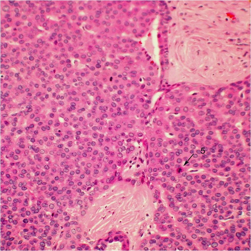 Histopathology of adenoid cystic carcinoma, basaloid type. This slide points out a mitotic figure (5), which suggests aggressive cancerous activity.  Image credit:  Mission For Vision .