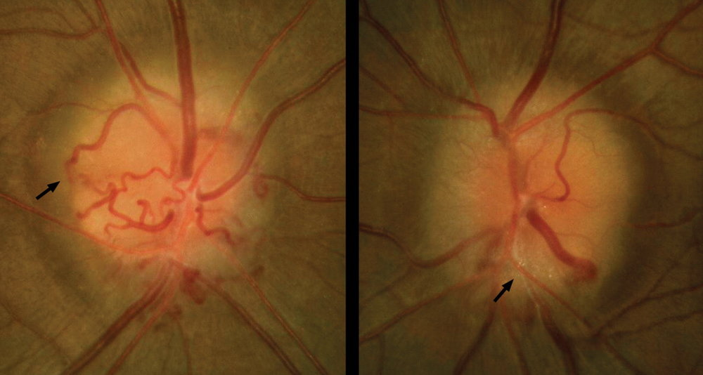 Chronic papilledema. The optic nerves remain elevated with blurred margins, with feathering of the retinal nerve fiber layer. The nerve can become more atrophic and pale. Retinochoroidal (optociliary) shunt vessels can form due to the chronic outflow obstruction (black arrow in left image). Refractile bodies representing lipid exudates can also be seen (black arrow in right image).  Image credit: Acheson JF.  Idiopathic intracranial hypertension and visual function . Br Med Bull. 2006;79-80:233-244.